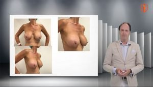 Breast lift and pin point technique with Dr. Beekman